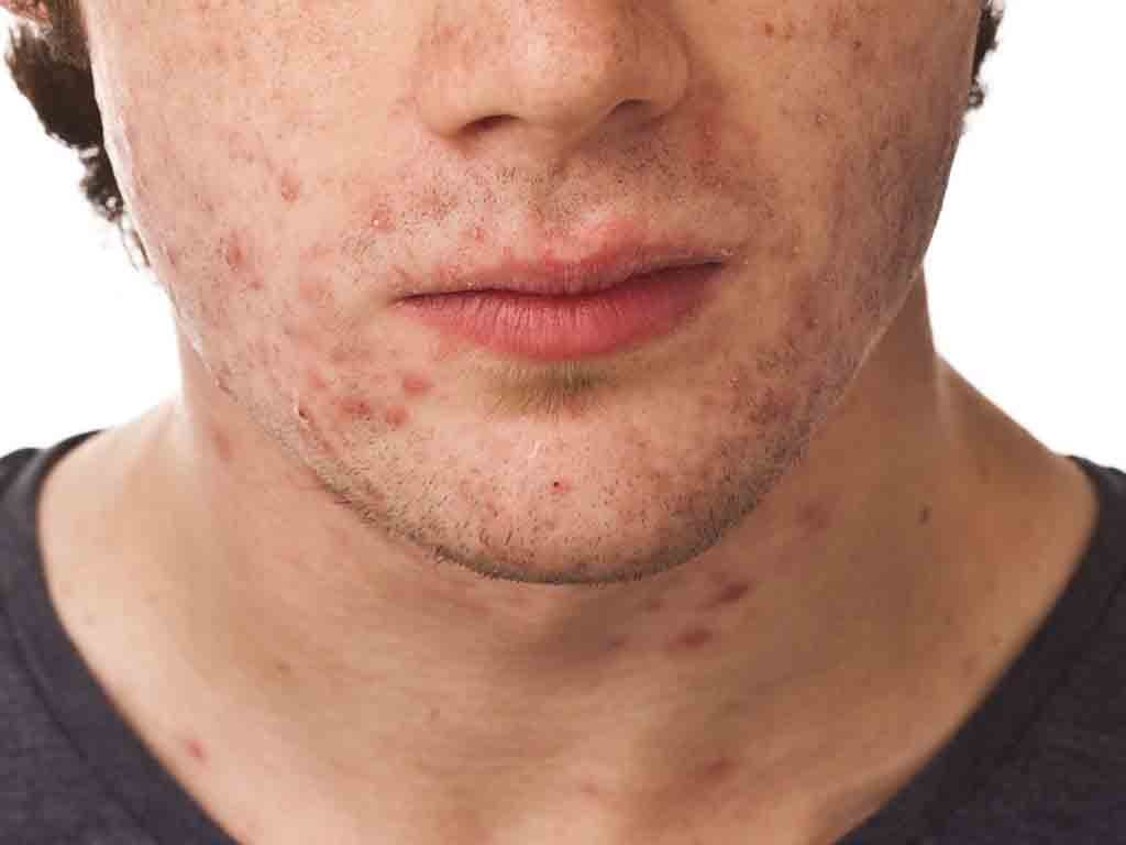Adult Acne and Modern Life