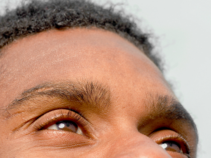 Eye Allergies: What You Don't Know