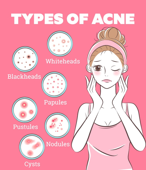 Variety Causes of Acne