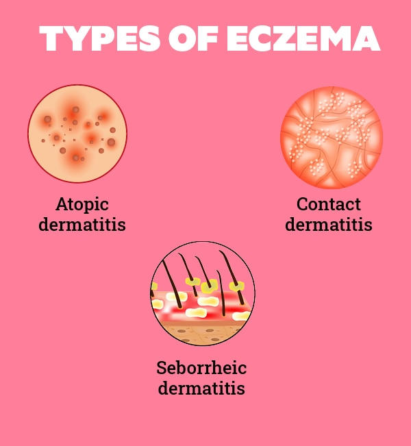 What You Need to Know About Eczema